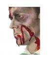 Cicatrice agrafes   Accessoires