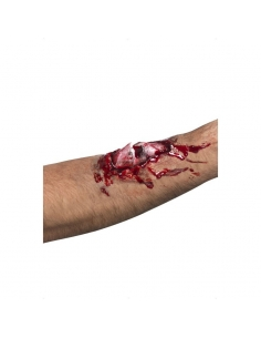 Cicatrice fracoeure ouverte   Accessoires